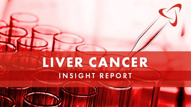 Liver Cancer Insight Report Current Therapies Drug Pipeline And Outlook