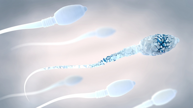 DNA-Damaged Sperm Identified as New Biological Marker for Repeated Miscarriages
