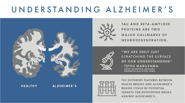 Alzheimers Graphic 1_updated