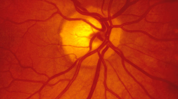 Eye Test May Offer Early Diagnosis for Alzheimer's Disease