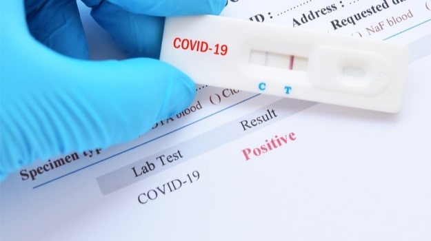 Coronavirus Test Results_Compressed
