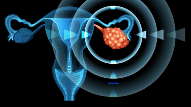 Merck KGaA and Pfizer's Checkpoint Inhibitor Fails in Late-Stage Ovarian Cancer Study
