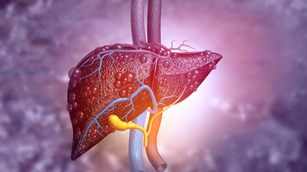 Researchers ID How Common Liver Cancer Mutation Changes Cells