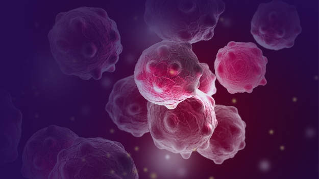 3D illustration of breast cancer cells