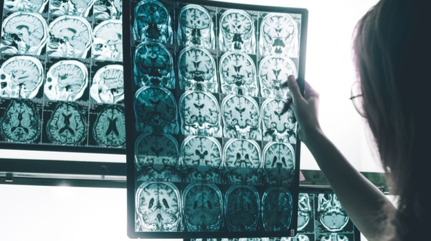 Alzheimer's: New Approaches and New Hope | BioSpace