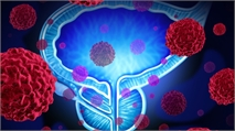 Janssen's Erleada Approved for New Prostate Cancer Indication
