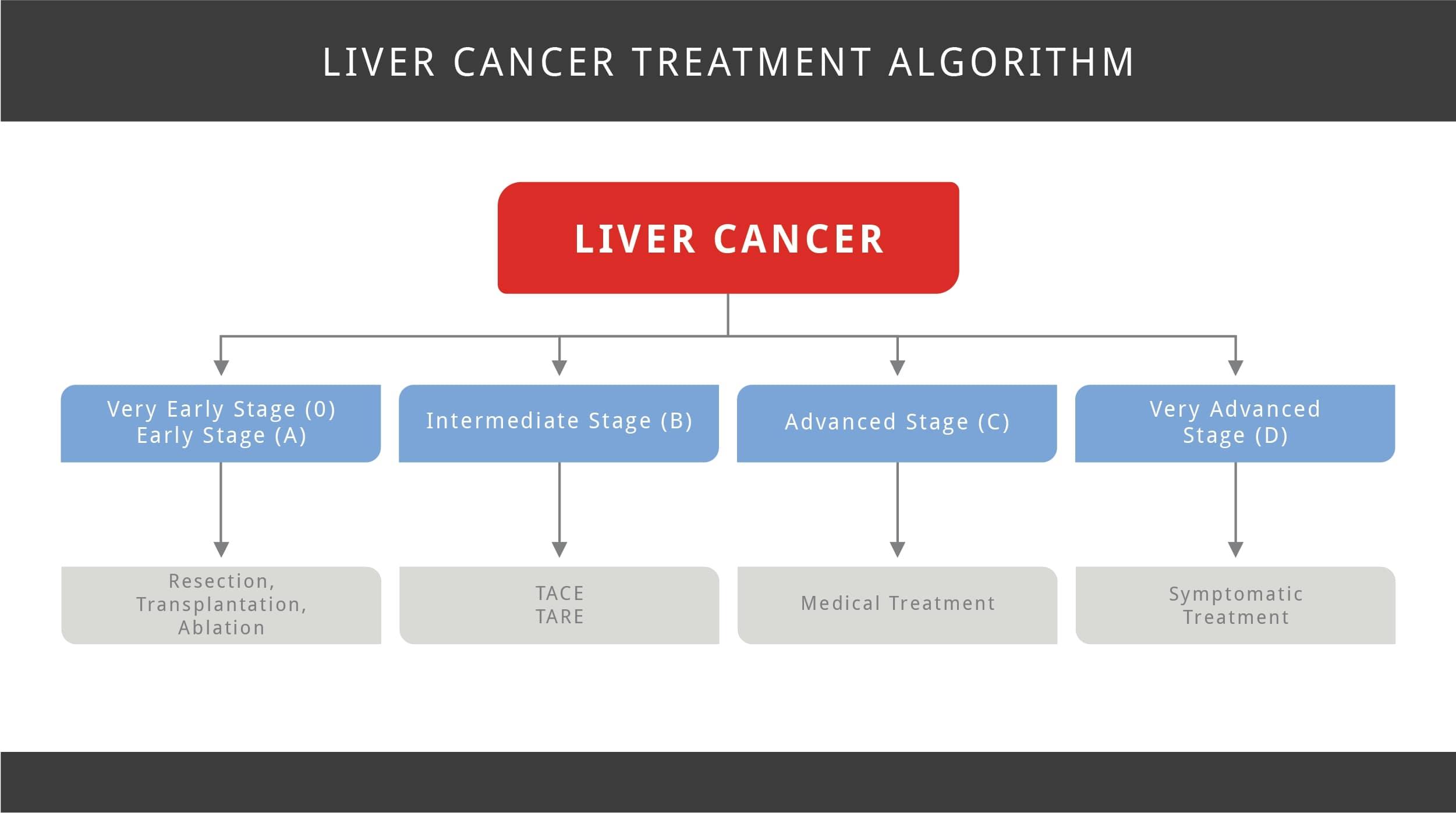 Liver Cancer Treatment Algorithm