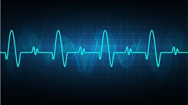 Heart Rhythm_Compressed