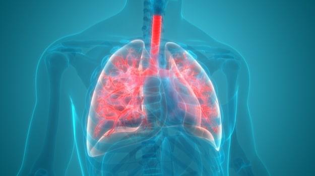 Pneumonia_Compressed