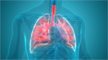 Genentech Drug Benefits Patients with COVID-19-Associated Pneumonia, Study Shows