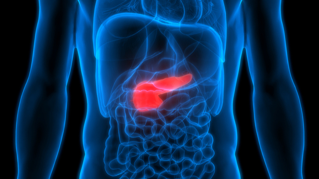 Pancreatic Cancer Awareness Month: New Drugs, New Approaches, New Science Underpins Approach